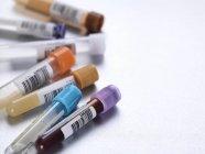 Pile de tubes d'essai médicaux remplis — Photo de stock