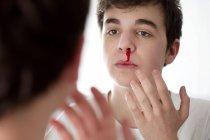 Giovane con sangue dal naso guardando nello specchio . — Foto stock