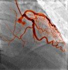 Vasos sanguíneos normales, radiografía - foto de stock