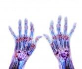 Ревматоїдний артрит рук — стокове фото