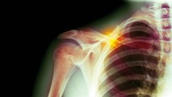 Coloured X-ray of a 16 year old male with a fractured clavicle (collar bone). — Stockfoto