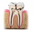 Pathology of Tooth decay — Stock Photo