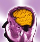 Cerebro humano normal - foto de stock