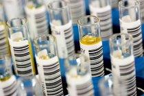 Códigos de barras en tubos de ensayo con muestras de sangre . - foto de stock