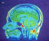 Resonancia magnética del cerebro normal - foto de stock