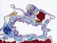 Tessuto polmonare, microscopio elettronico a trasmissione colorati (Tem). — Foto stock