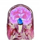 Пухлина зачіпають гіпофіза залози — стокове фото