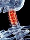 Боль в шейном позвоночнике — стоковое фото