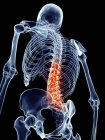 Dor na coluna humana — Fotografia de Stock