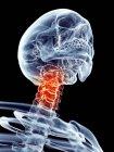 Шейные боли локализуются в шейных позвонков — стоковое фото
