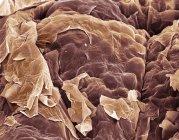 Color micrografía electrónica (Sem) de las células epiteliales escamosas en la superficie de la piel. - foto de stock