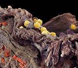 Pyodermie cutanée — Photo de stock
