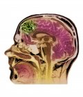 Colored magnetic resonance imaging head scan showing arteriovenous malformation. — Stock Photo
