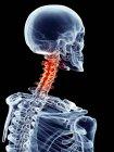 Douleur cervicale localisée dans les vertèbres cervicales — Photo de stock