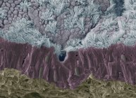 Coloured scanning electron micrograph (SEM) of a fractured mucous membrane of the trachea (wind pipe), showing the epithelium and underlying connective tissue. — Foto stock