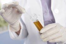 Travailleur médical gants mains tenant le bâton de test dans le tube d'échantillon d'urine . — Photo de stock