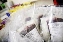 Borse delle donazioni di sangue in laboratorio — Foto stock