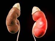 Riñones humanos con glándulas suprarrenales - foto de stock