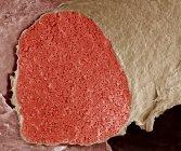 Micrógrafo electrónico de barrido coloreado (SEM) de una sección a través de una vena fetal llena de glóbulos rojos (eritrocitos, rojos) ). - foto de stock