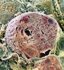 Células pancreáticas acinares - foto de stock