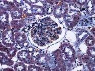 Kidney glomerulus and podocyte cells — Stock Photo