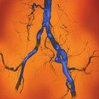 Arterias abdominales estrechas, angiografía coloreada - rayos X de los vasos sanguíneos  . - foto de stock