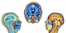 Imágenes de Resonancia Magnética (RM) de dos secciones sagitales medias y una axial (de sección transversal) a través de la cabeza de una mujer normal de 46 años, mostrando estructuras del cerebro, la columna vertebral y los tejidos faciales . - foto de stock