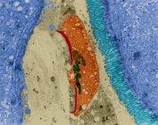 Infección protozoaria en la luz intestinal humana - foto de stock