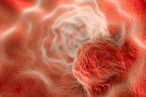 Rendimiento de cáncer de esófago - foto de stock