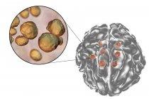 Meningitis caused by fungus Cryptococcus — Stock Photo