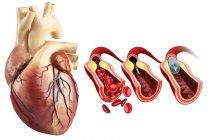 Inserción de stent de angioplastia coronaria - foto de stock