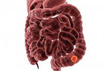 Cancer du côlon sur fond clair, illustration numérique . — Photo de stock