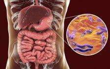 Ilustración digital de la bacteria Helicobacter pylori en el estómago humano . - foto de stock