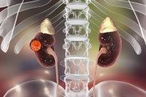 Ilustración digital del cáncer de riñón . - foto de stock