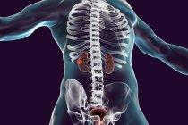 Ilustración digital del cuerpo humano con cáncer de riñón . - foto de stock