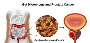 Концептуальные иллюстрации ассоциации бактериальный massiliensis бактерий в кишечнике с развитием рака простаты. — стоковое фото