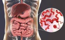 Intestino humano y primer plano de la bacteria Campylobacter jejuni causante de Campylobacteriosis, ilustración conceptual . - foto de stock