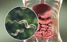 Human intestine and close-up of Campylobacter jejuni bacteria causing Campylobacteriosis, conceptual illustration. — Stock Photo