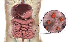 Primer plano de la ameba parasitaria en el intestino humano, obra de arte digital . - foto de stock