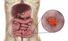 Primo piano dell'ameba parassitaria nell'intestino umano, opere d'arte digitali . — Foto stock