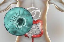 Obra digital de microorganismo patógeno abstracto en el intestino grueso humano . - foto de stock