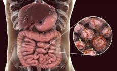 Ilustración digital de múltiples gusanos en el intestino humano . - foto de stock