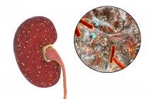 Ілюстрація жовтий абсцесів на нирки і макро бактерії Escherichia. — стокове фото