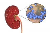 Ilustración de abscesos amarillos en el riñón y primer plano de la bacteria Enterococcus . - foto de stock
