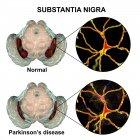 Иллюстрация здоровых и вырожено nigra substantia мозг человека с дофаминергические нейроны. — стоковое фото