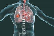 Силуэт человека показаны рак опухоли легких, концептуальные иллюстрации. — стоковое фото