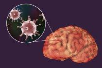 Infección cerebral causada por el virus del herpes, ilustración digital . - foto de stock
