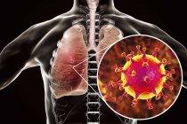 Infección pulmonar por el virus MERS, ilustración conceptual . - foto de stock