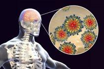 Encefalitis del cerebro humano causada por enterovirus del sarampión, ilustración conceptual . - foto de stock