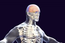 Ilustración digital del cerebro con signos de encefalitis . - foto de stock